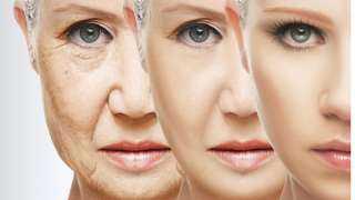 الميزوثيرابي وتجديد رونق الوجه